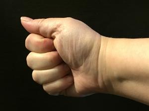 poison thumb